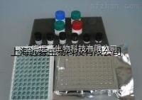 人αL艾杜糖苷酸酶(IDUA)ELISA试剂盒